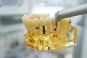 Лазерная стоматология. Стоматологическая клиника